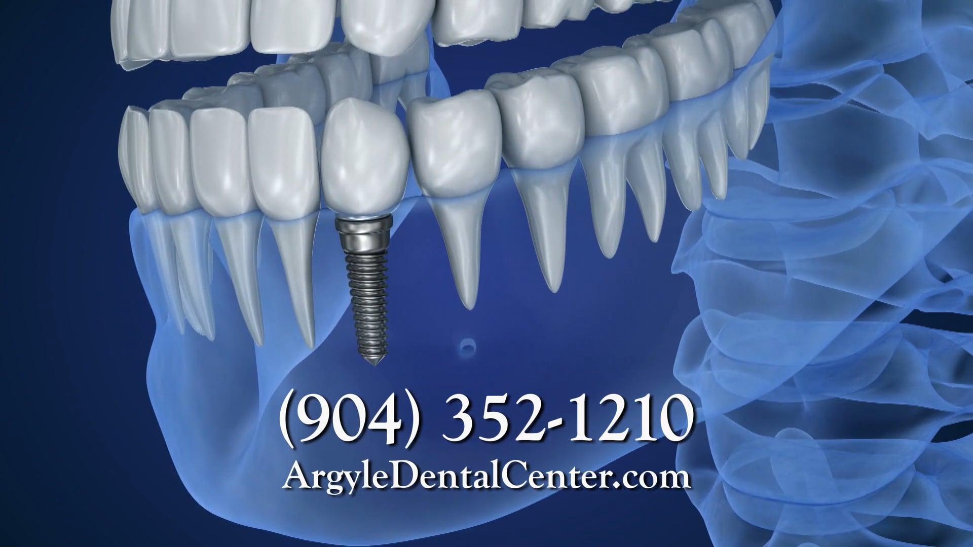 Argyle Dental Center - Implants