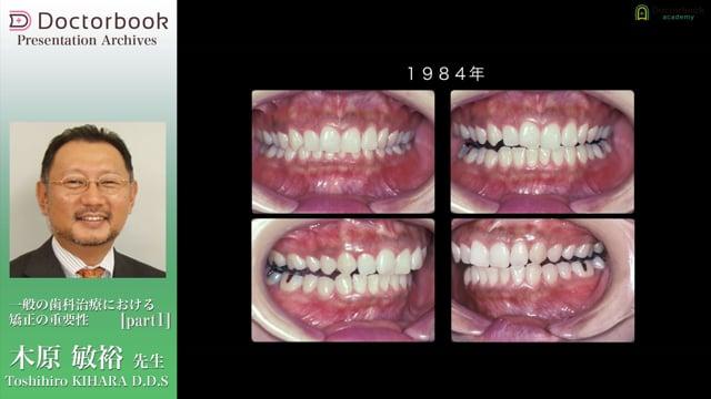 一般の歯科治療における矯正の重要性