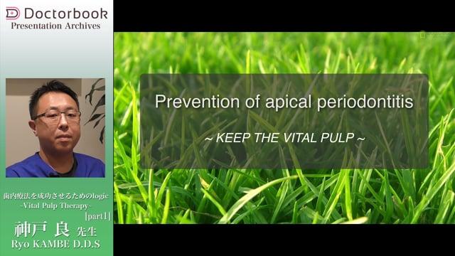 【オススメ動画 Pick UP】歯内療法を成功させるためのlogic ~Vital Pulp Therapy~