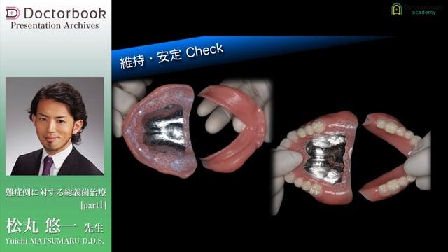 【オススメ動画 Pick UP】難症例に対する総義歯治療