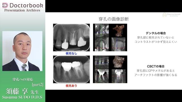 #2 穿孔の画像診断