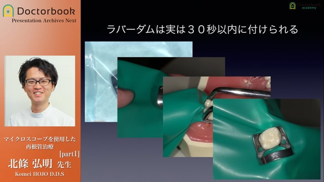 マイクロスコープを使用した再根管治療