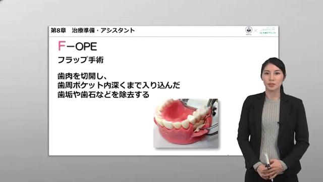第8章 治療準備・アシスト:F-OPE