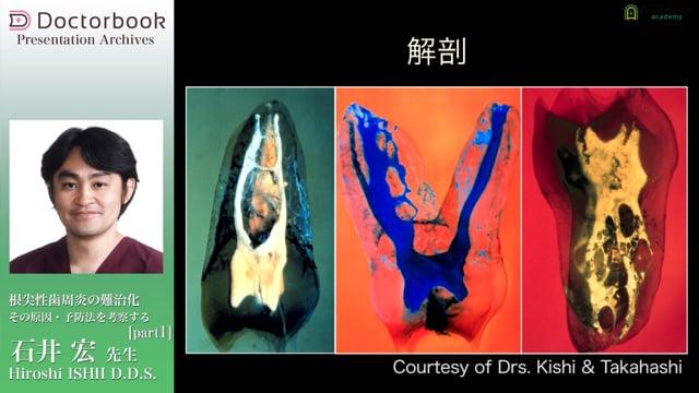 根尖性歯周炎の難治化 その原因・予防法を考察する