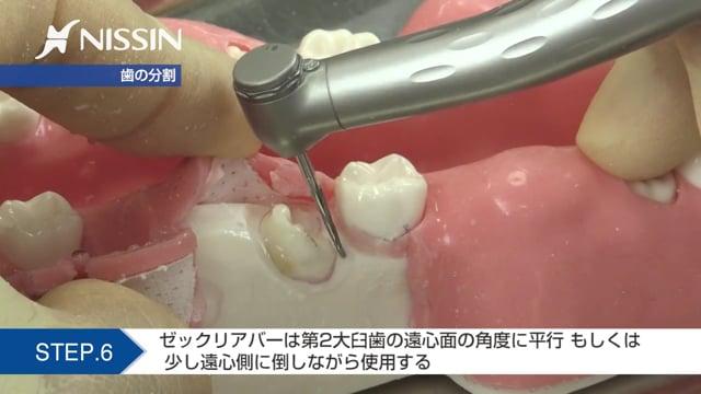 第2章 埋没抜歯の基本:抜歯の基本(近心傾斜歯)