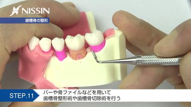 第7章 歯肉切除術の基本:オープンフラップキュレッタージの基本