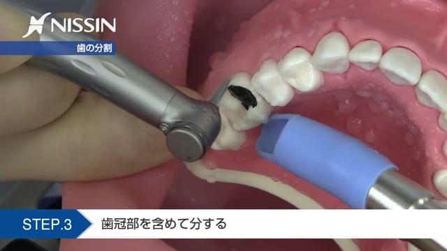 第11章 歯周外科の基本:トライセクション