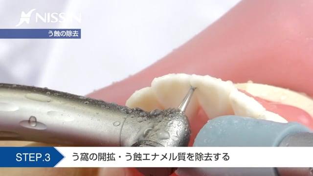 第2章 CR修復:3級CR修復(上顎中切歯)