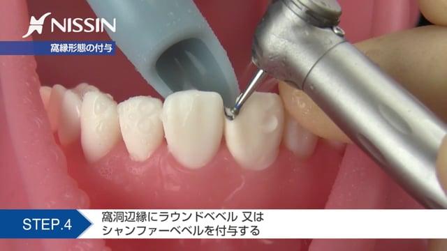 第2章 CR修復:4級CR修復(上顎中切歯)
