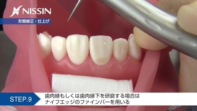第2章 CR修復:5級CR修復(上顎中切歯)