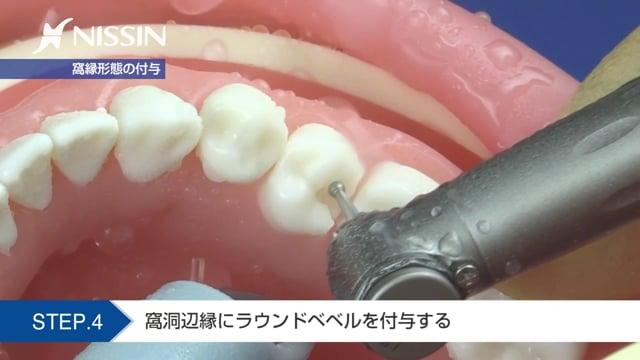 第2章 CR修復:2級CR修復(OD窩洞 下顎第2小臼歯)
