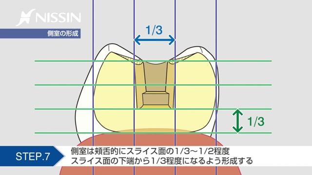 第3章 保険インレー窩洞形成 アンレー形成:2級MODインレー窩洞形成の基本(スライス式窩洞 下顎第2小臼歯)