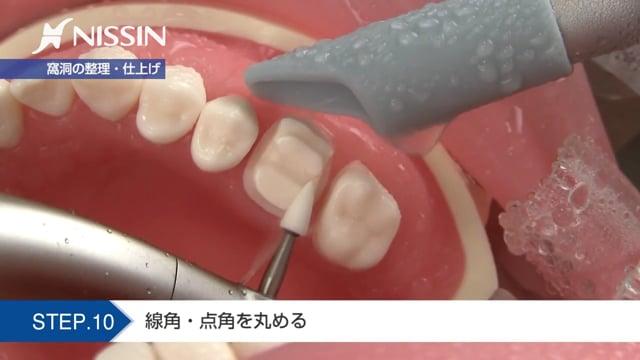 第4章 自費インレー窩洞形成 アンレー形成:セラミックアンレー形成の基本(上顎第1大臼歯)