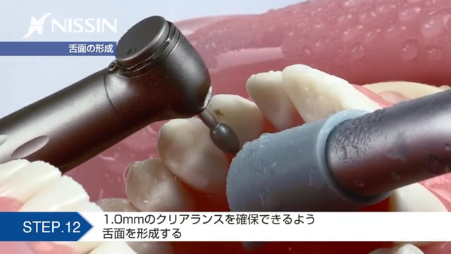 第6章 保険支台歯形成:レジン前装冠形成の基本(上顎犬歯)