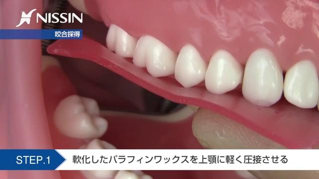 第6章 保険支台歯形成:印象採得の基本(咬合採得-ワックスバイト法- 下顎第1大臼歯)