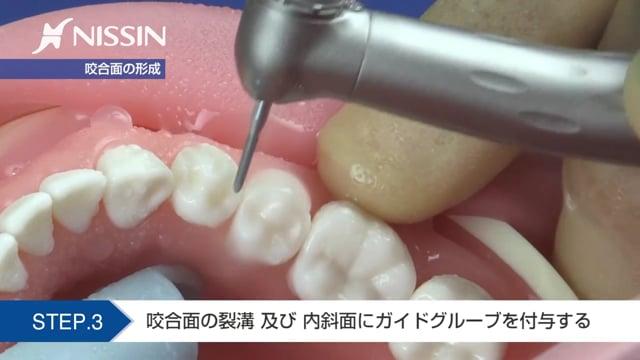 第7章 自費支台歯形成:ハイブリッドクラウン形成の基本(下顎第1小臼歯)