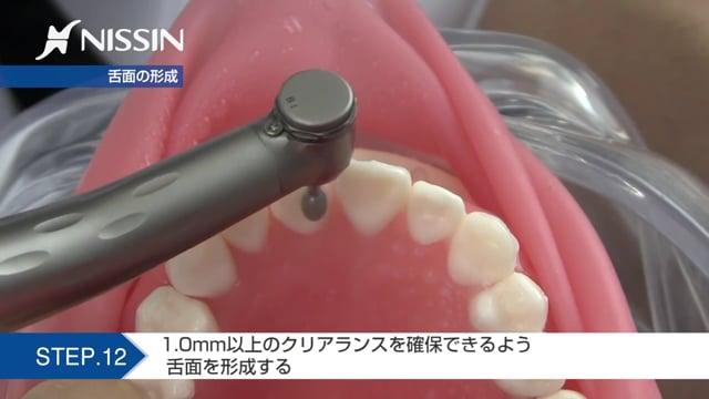 第7章 自費支台歯形成:ジルコニアクラウン形成の基本(上顎中切歯)