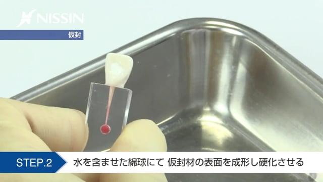 第9章 歯内療法修復の基本:仮封の基本(水硬性仮封材 上顎中切歯)
