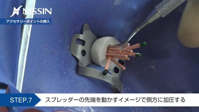 第10章 歯内療法修復:根管充填の基本(側方加圧法 下顎第1大臼歯)