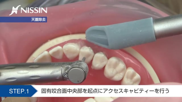 第10章 歯内療法修復:髄室開拡の基本(上顎第1小臼歯)