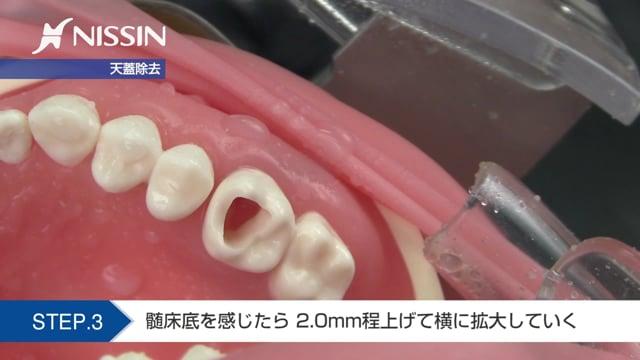 第10章 歯内療法修復:髄室開拡の基本(上顎第1大臼歯)