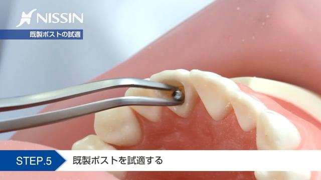 第11章 支台築造:支台築造の基本(直接法 上顎中切歯)