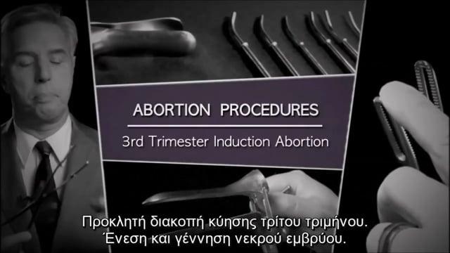 Προκλητή διακοπή κύησης τρίτου τριμήνου. Ένεση και γέννηση νεκρού εμβρύου.