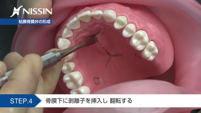 第4章 骨隆起の除去:骨隆起の除去の基本(口蓋隆起除去)