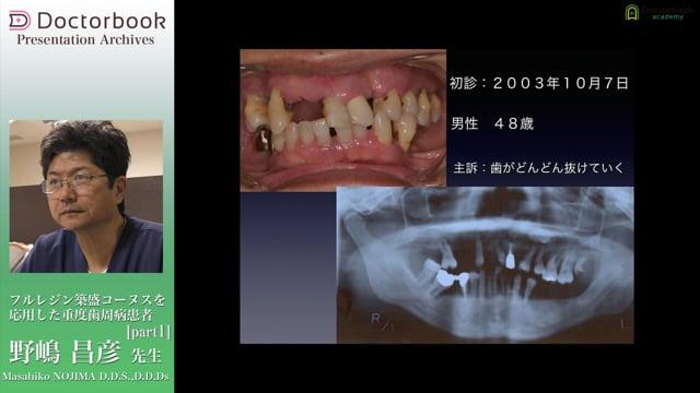 フルレジン築盛コーヌスを応用した重度歯周病患者
