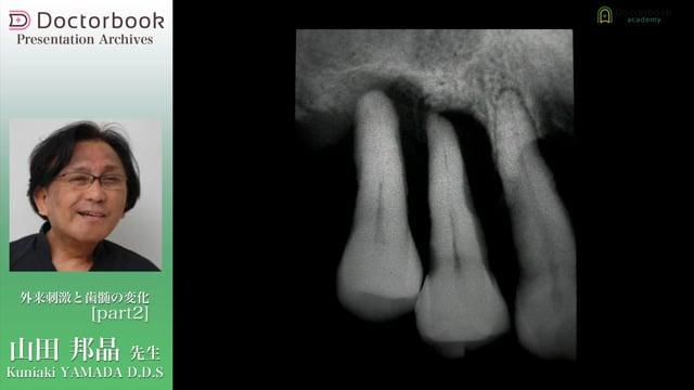 #2 穿通経路障害歯症例へのアプローチ