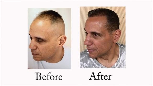 Hair Transplant Testimonial - New Jersey