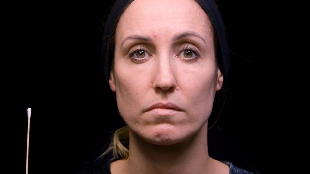 Lower Lip Asymmetry Treatment