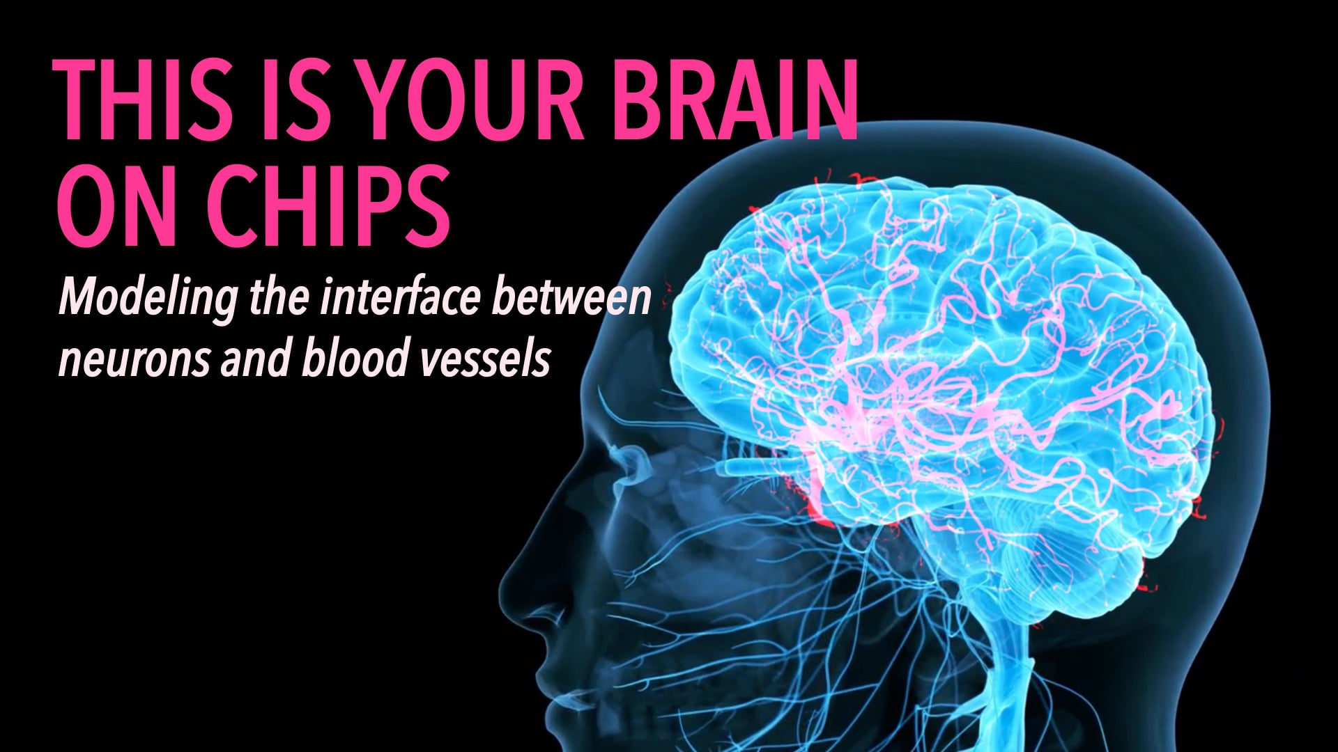 This is Your Brain on Chips