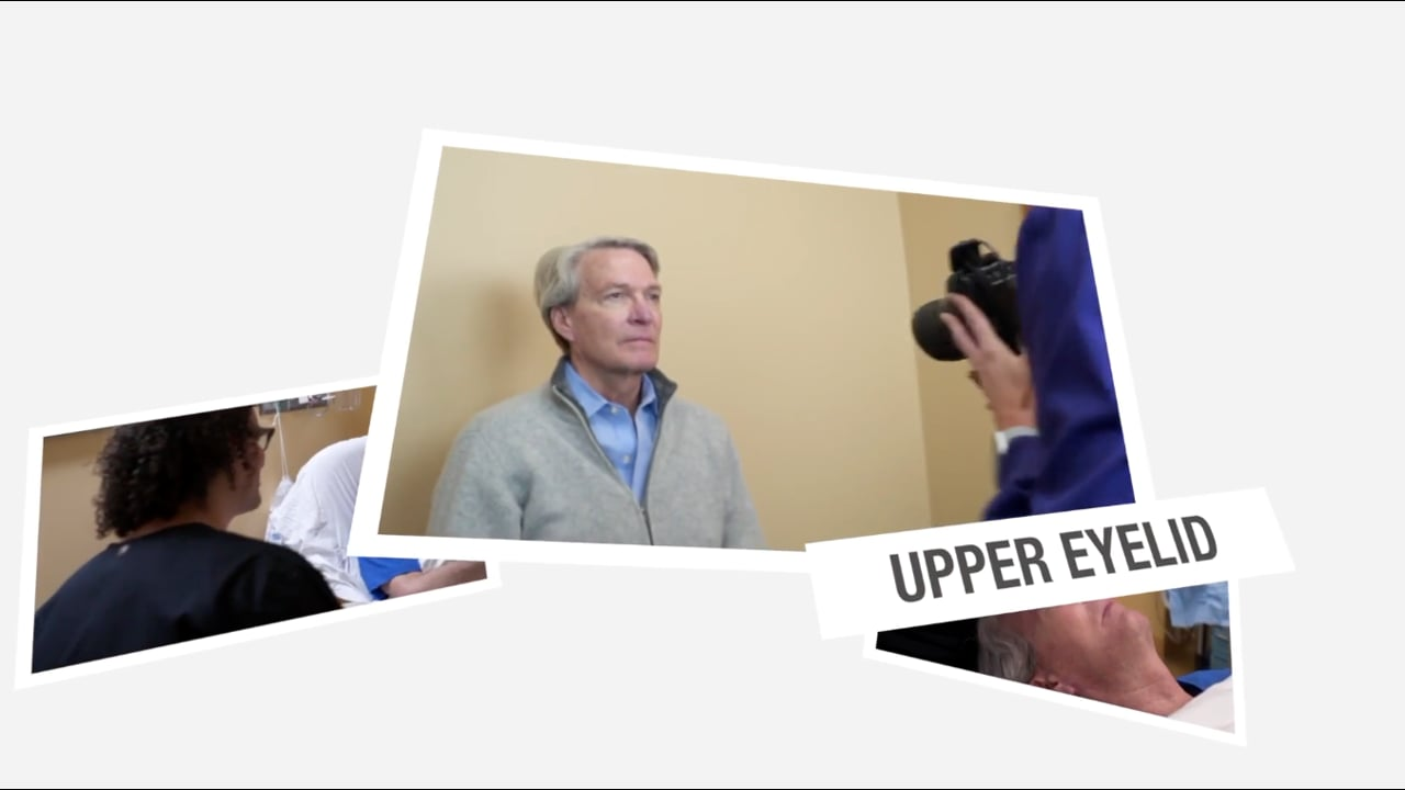 EYELIDS - Upper Blepharoplasty - The Experience with Jerry - Graphic warning