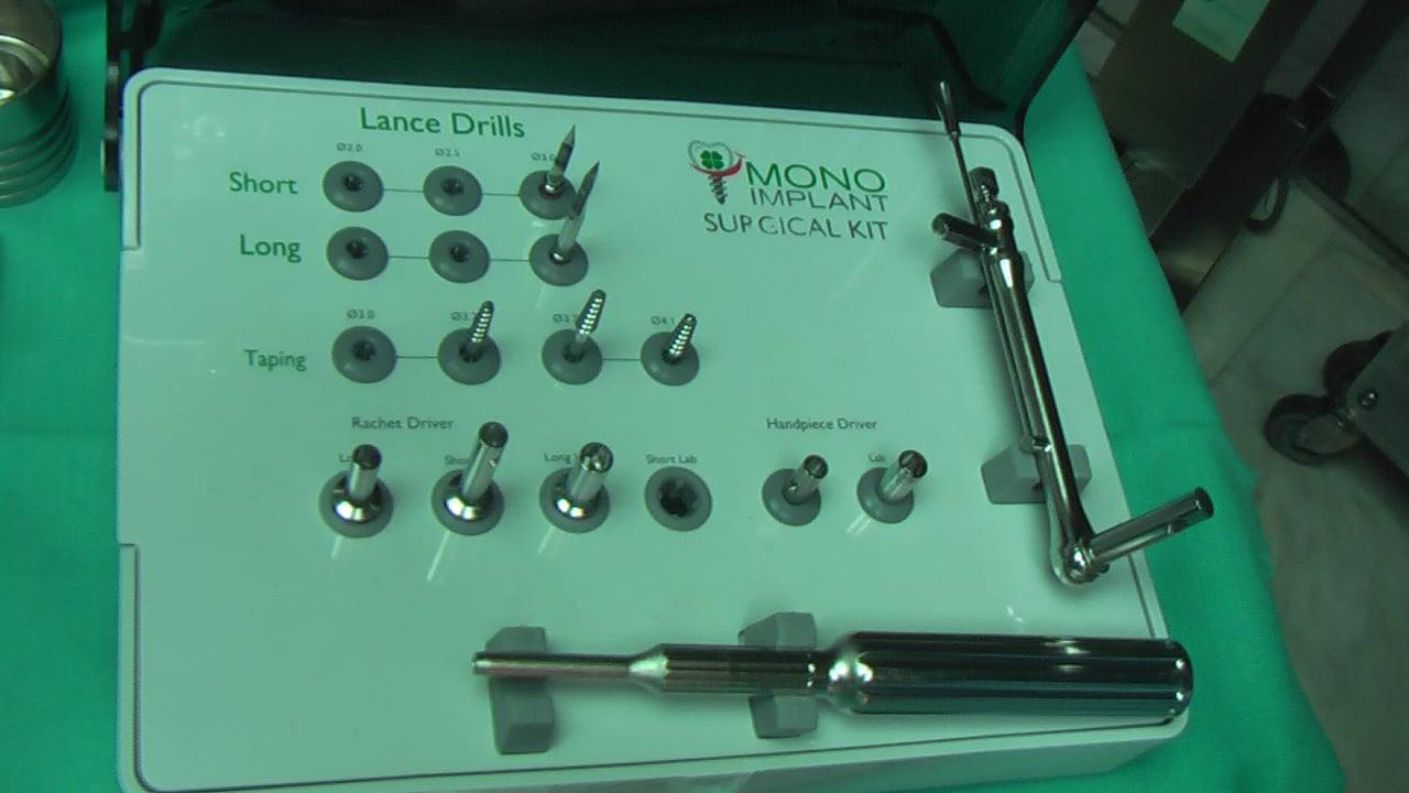 MIDI TECHNIQUE MONOIMPLANT.CLINICA DOCTORES REY VALLADOLID