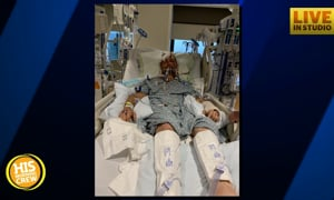 Ben Collided with a Deer 3 Weeks Ago, Family is Still Hopeful