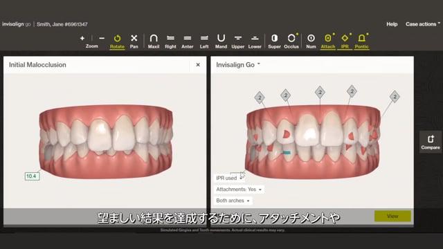 【PV】前歯部を気軽に、美しく。インビザライン Goシステム治療のメリット紹介