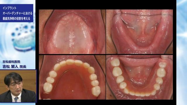 インプラントオーバーデンチャーにおける義歯洗浄剤の役割を考える