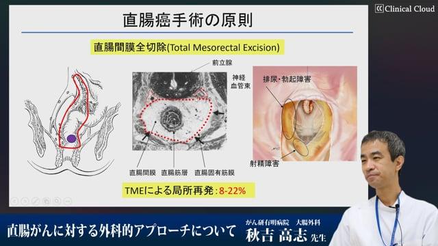 秋吉 高志先生:直腸がんに対する外科的アプローチについて