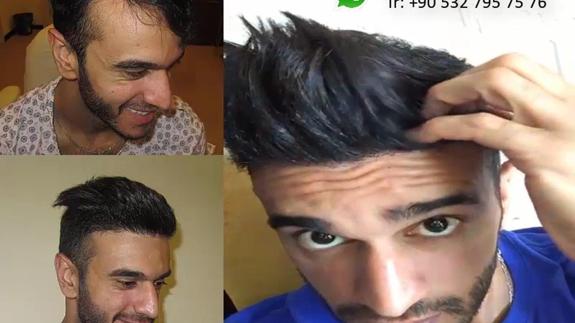 زرع الشعر قبل وبعد  | Hair Transplant Azerbaijan