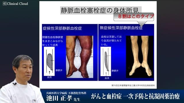 池田 正孝先生:がんと血栓症 一次予防と抗凝固薬治療