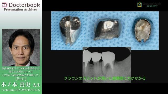 歯内療法を行うための修復物除去に関する各種テクニック〜安全かつ効率的な除去を目指して〜