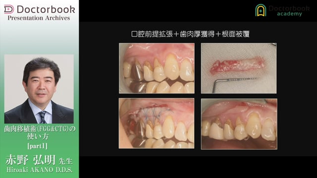歯肉移植術(FGG&CTG)の使い方
