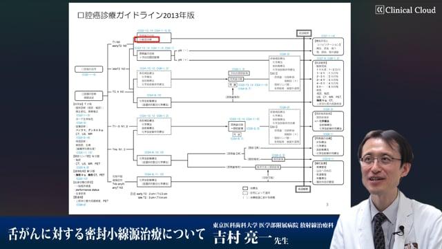 吉村 亮一先生:舌がんに対する密封小線源治療について