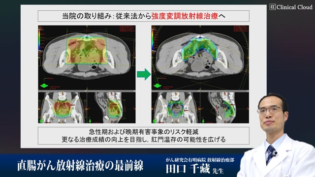 田口 千蔵先生:直腸がん放射線治療の最前線