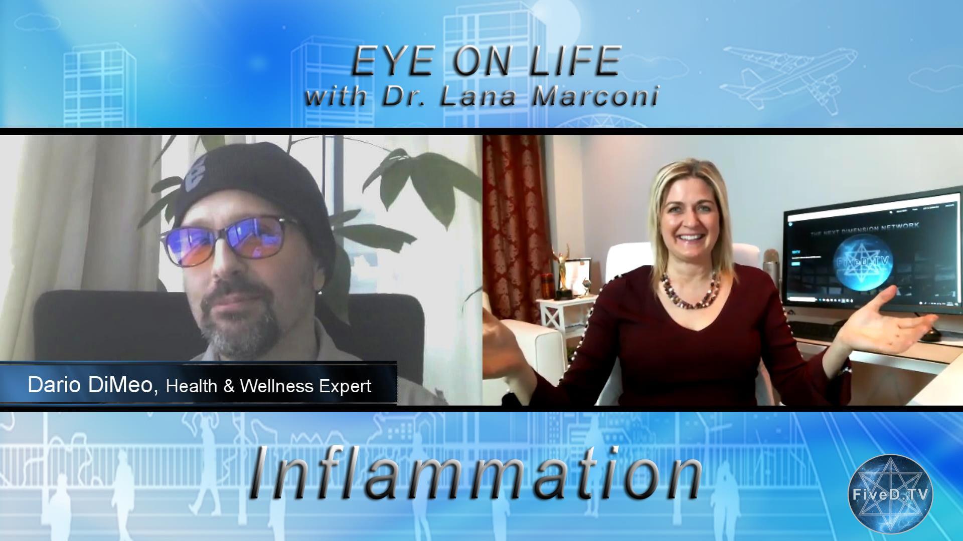 Eye On Life: Inflammation