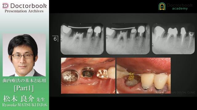 歯内療法の基本と応用