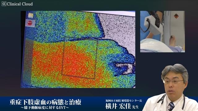 横井 宏佳先生:重症下肢虚血の病態と治療?膝下動脈病変に対するEVT?