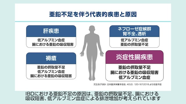 猿田 雅之先生:IBD診療における血清亜鉛モニタリング
