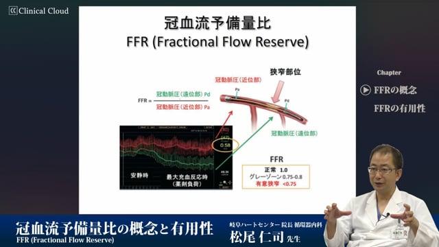 松尾 仁司先生:冠血流予備量比の概念と有用性/松尾仁司先生(岐阜ハートセンター)
